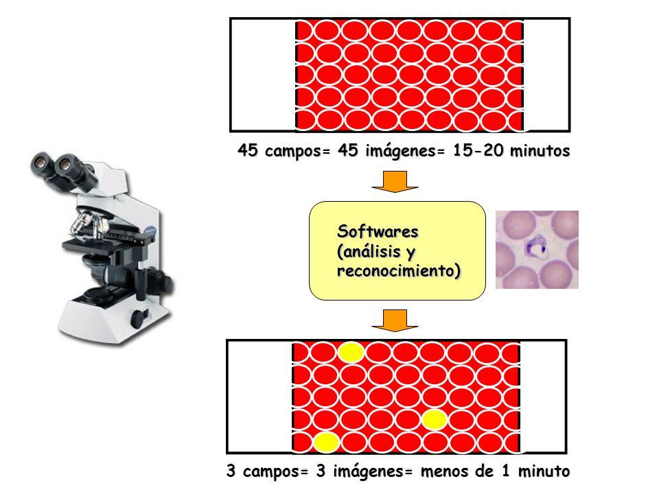 45 campos= 45 imágenes= 15-20 minutos