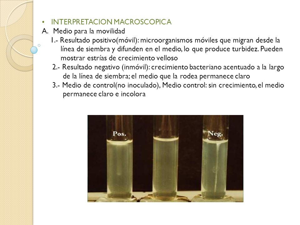 INTERPRETACION MACROSCOPICA