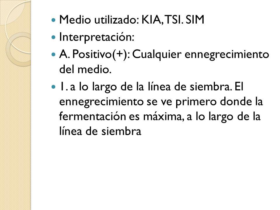 Medio utilizado: KIA, TSI. SIM