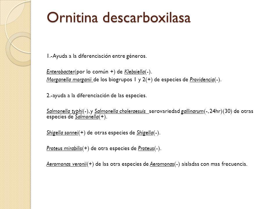 Ornitina descarboxilasa