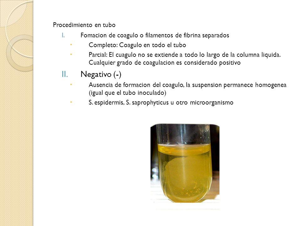 Negativo (-) Procedimiento en tubo