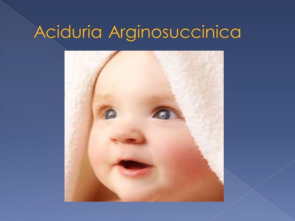 Aciduria Arginosuccinica