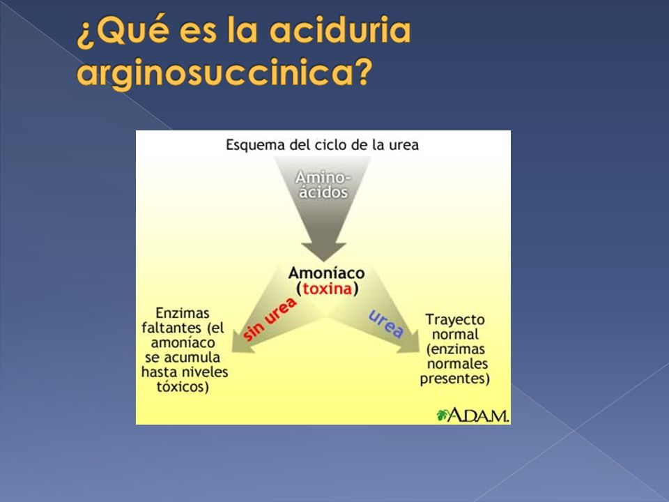 ¿Qué es la aciduria arginosuccinica