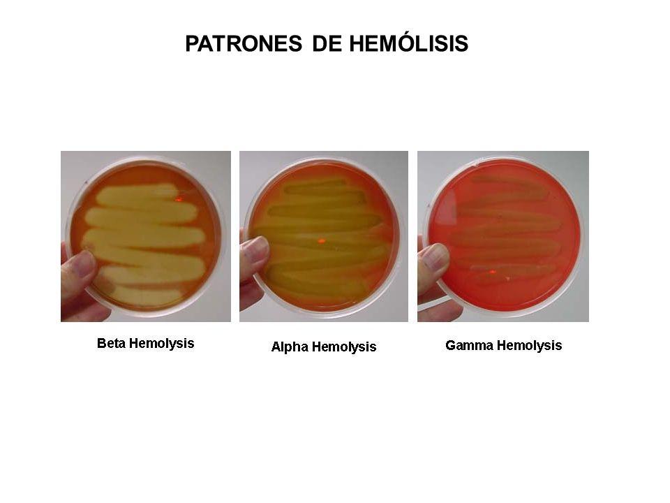 PATRONES DE HEMÓLISIS