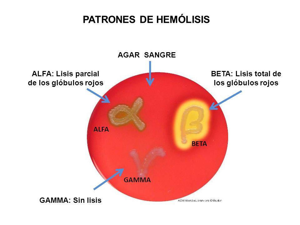 PATRONES DE HEMÓLISIS ALFA BETA GAMMA AGAR SANGRE