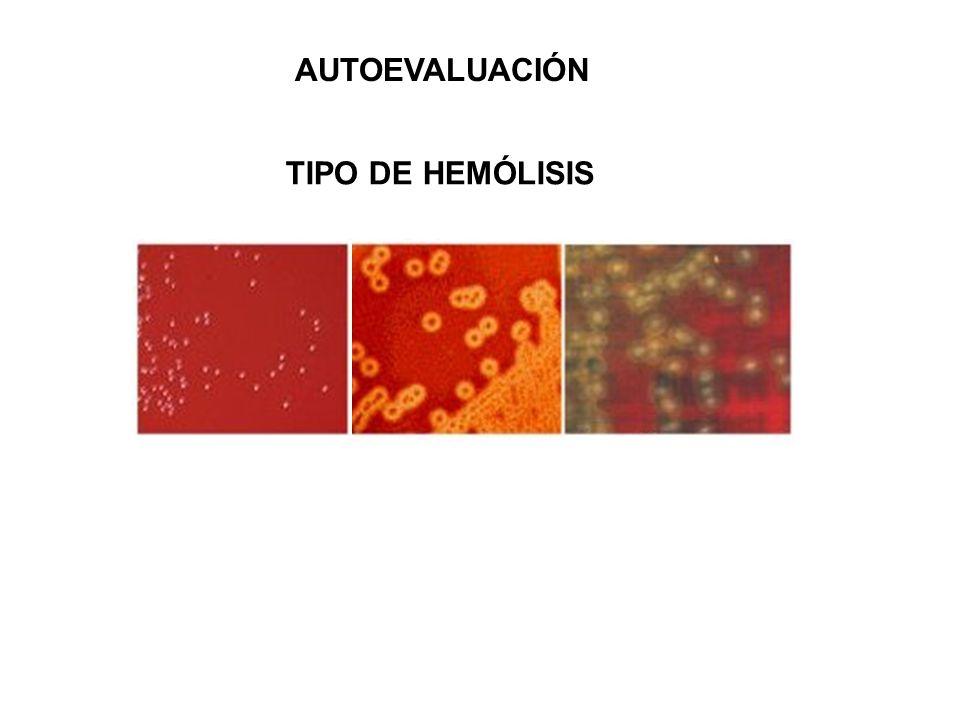 AUTOEVALUACIÓN TIPO DE HEMÓLISIS NO HEMOLITICO