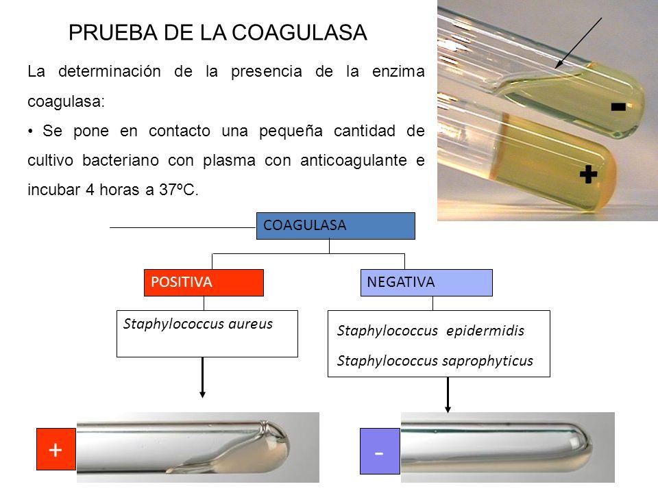 - + - + PRUEBA DE LA COAGULASA