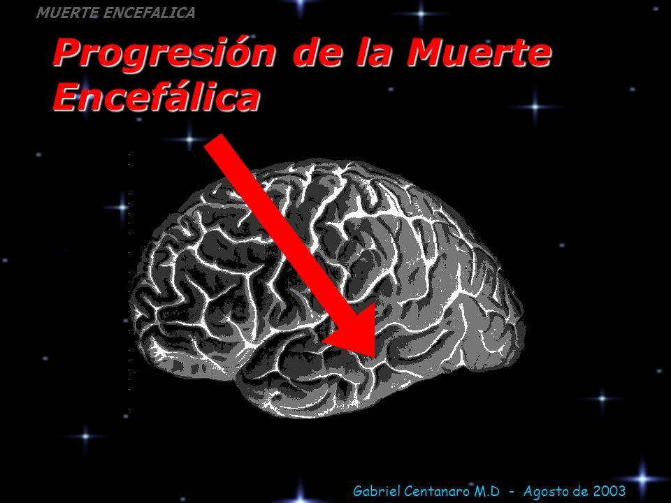 Progresión de la Muerte Encefálica