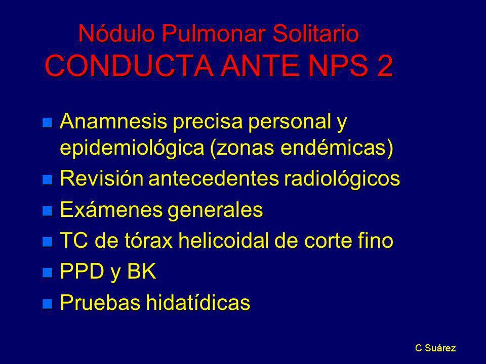 Nódulo Pulmonar Solitario CONDUCTA ANTE NPS 2