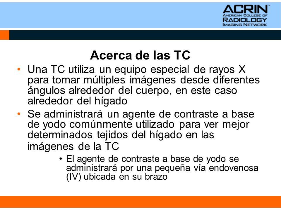 Acerca de las TC