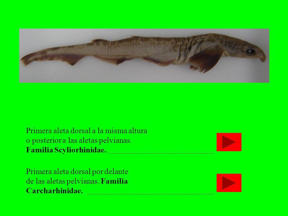Primera aleta dorsal a la misma altura o posterior a las aletas pelvianas. Familia Scyliorhinidae.