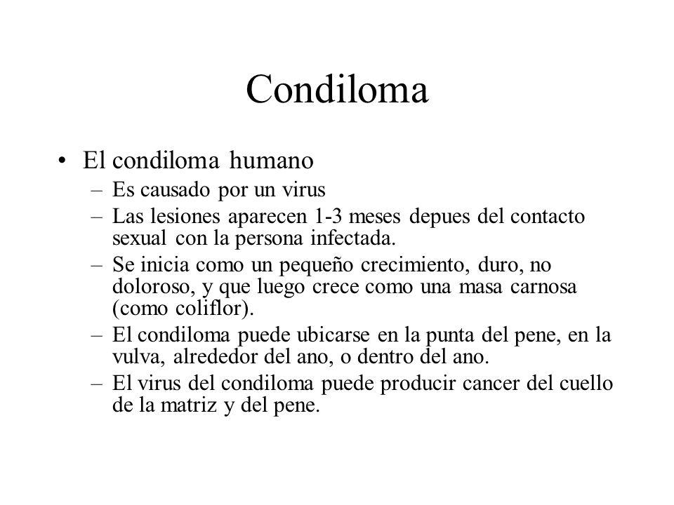 Condiloma El condiloma humano Es causado por un virus