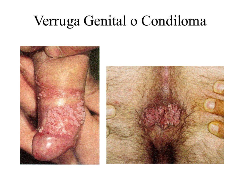 Verruga Genital o Condiloma