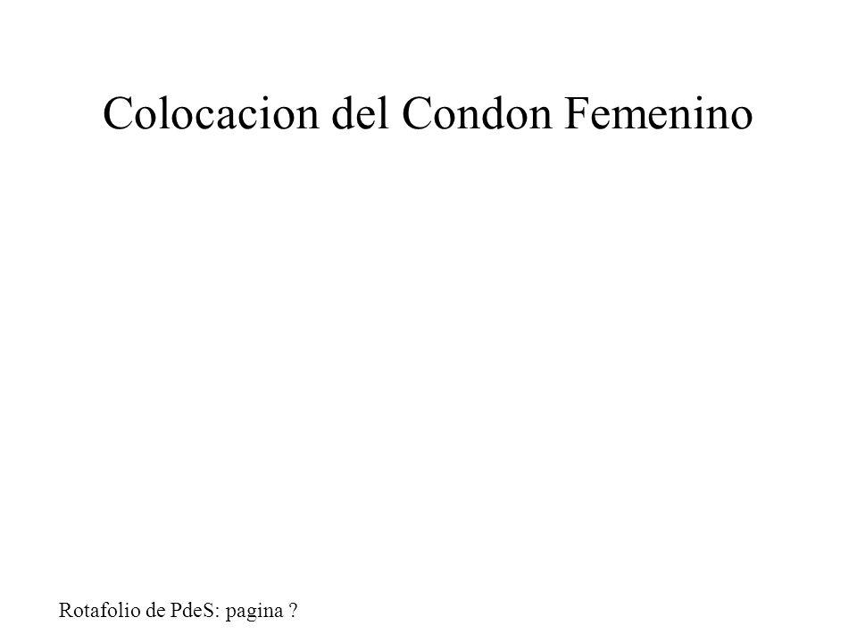Colocacion del Condon Femenino