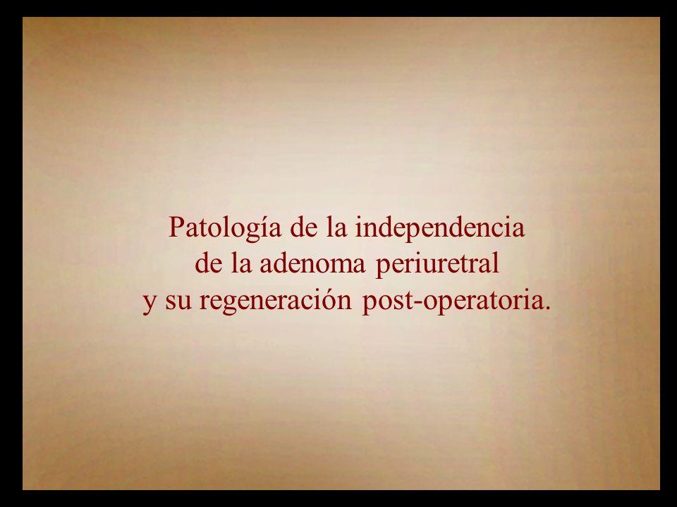 Patología de la independencia de la adenoma periuretral