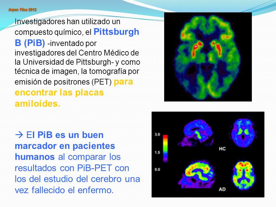 Investigadores han utilizado un compuesto químico, el Pittsburgh B (PiB) -inventado por investigadores del Centro Médico de la Universidad de Pittsburgh- y como técnica de imagen, la tomografía por emisión de positrones (PET) para encontrar las placas amiloides.