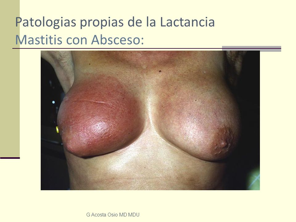Patologias propias de la Lactancia Mastitis con Absceso: