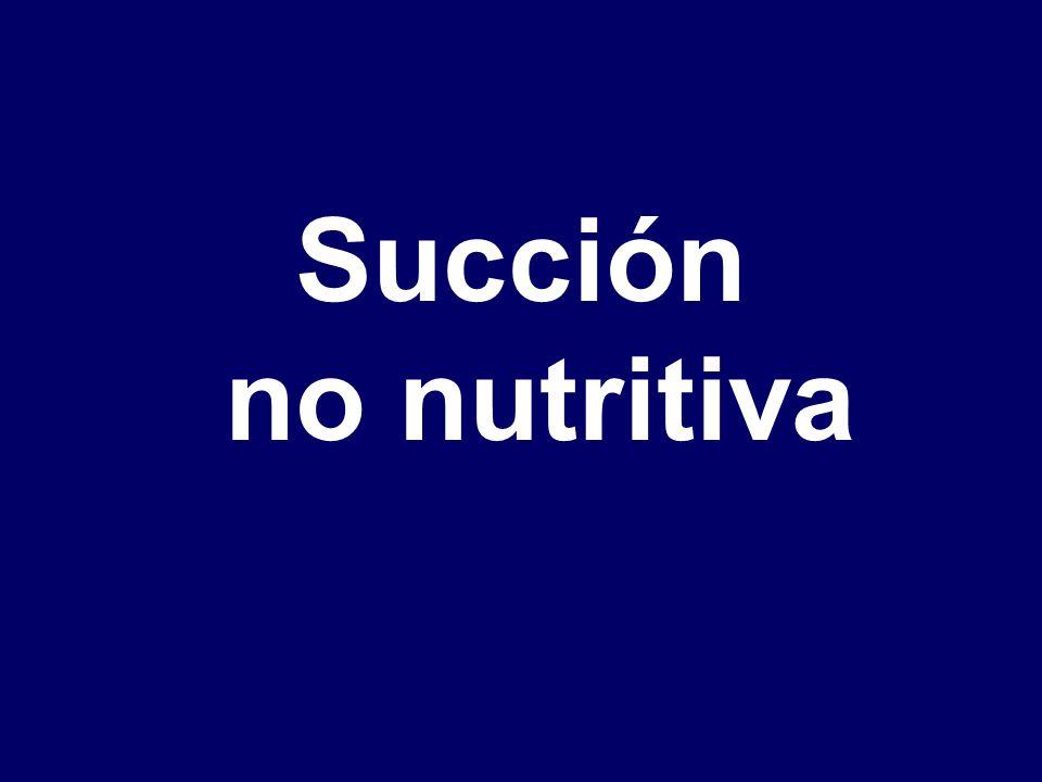 Succión no nutritiva