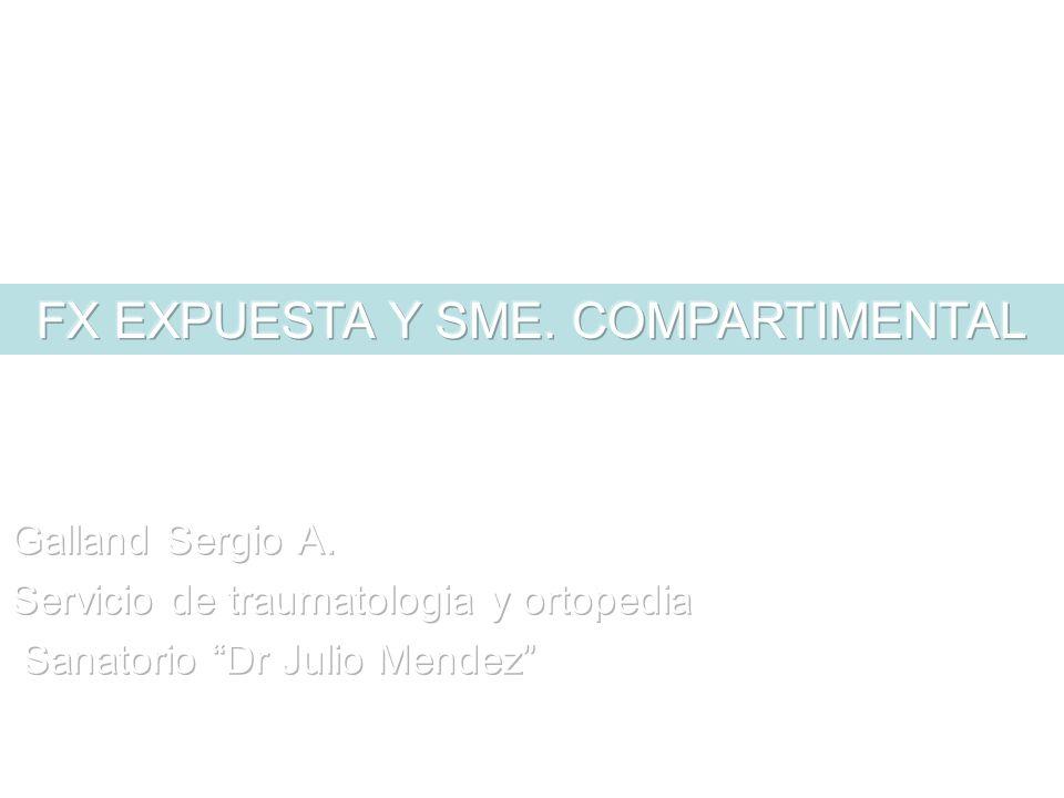 FX EXPUESTA Y SME. COMPARTIMENTAL