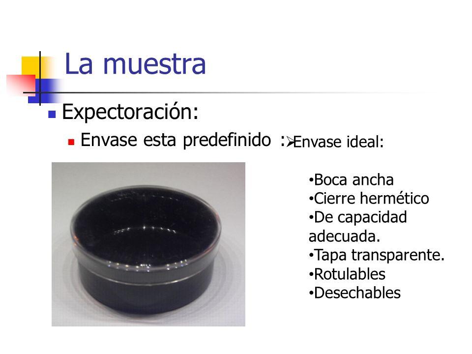 La muestra Expectoración: Envase esta predefinido : Envase ideal: