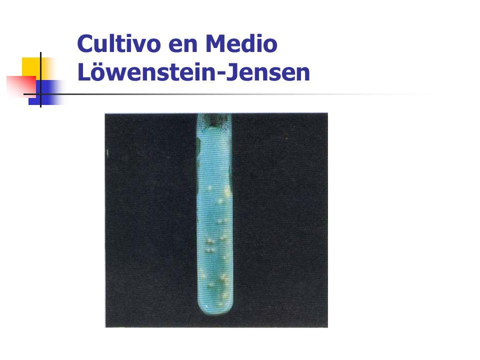 Cultivo en Medio Löwenstein-Jensen