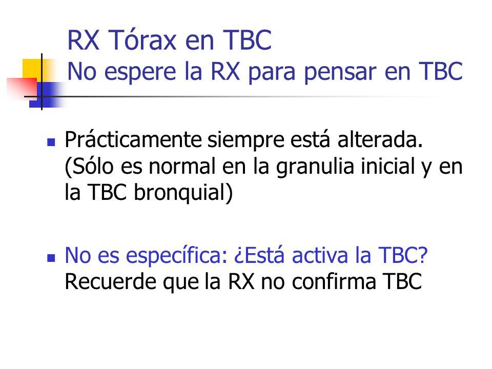 RX Tórax en TBC No espere la RX para pensar en TBC