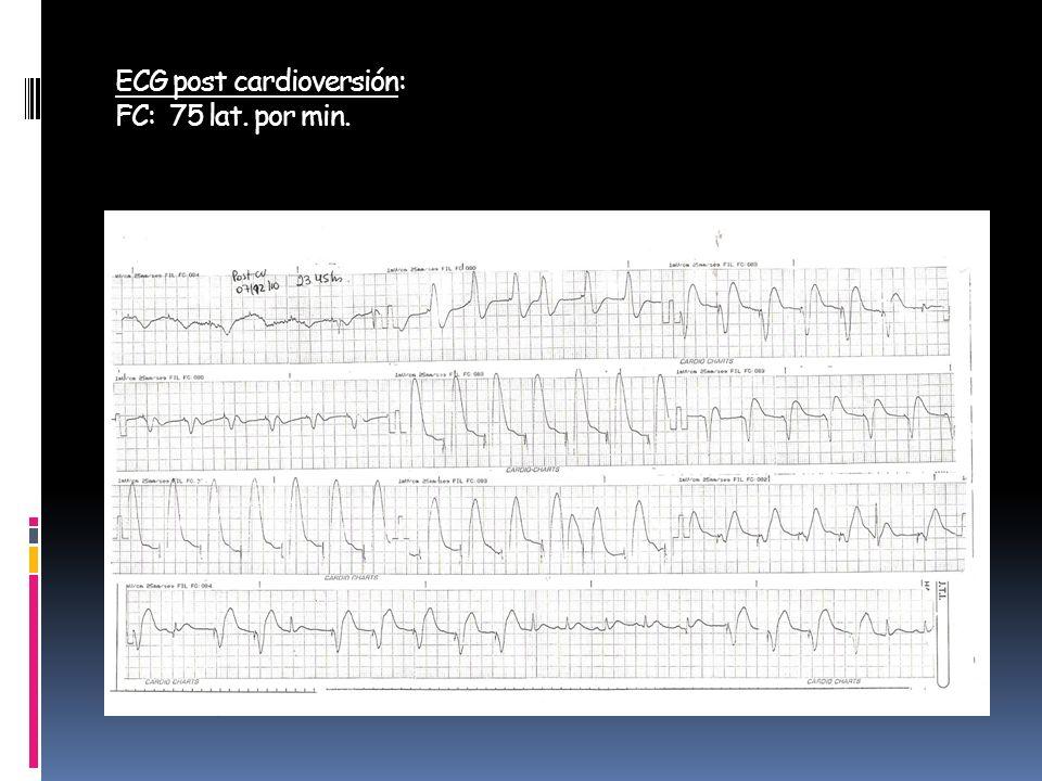ECG post cardioversión: FC: 75 lat. por min.