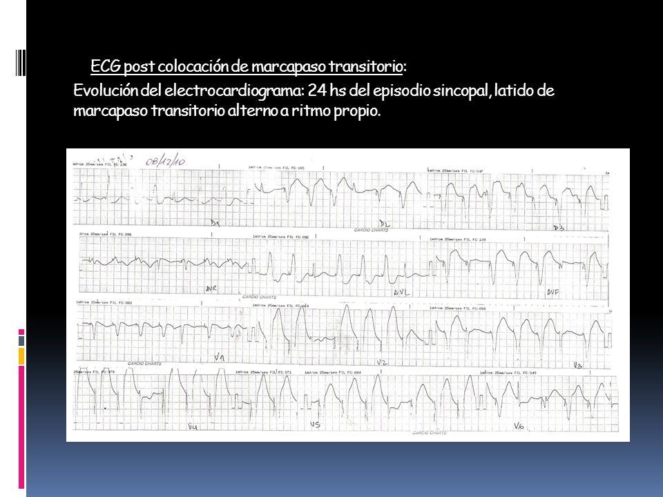 ECG post colocación de marcapaso transitorio: Evolución del electrocardiograma: 24 hs del episodio sincopal, latido de marcapaso transitorio alterno a ritmo propio.