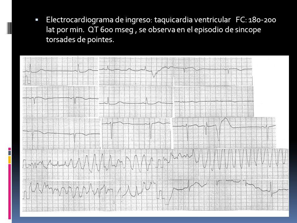 Electrocardiograma de ingreso: taquicardia ventricular FC: 180-200 lat por min.