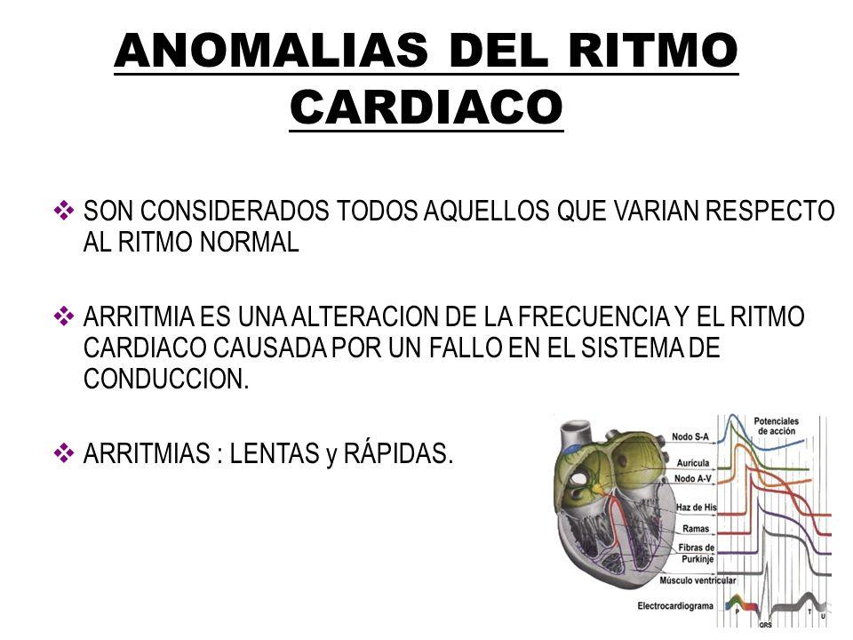 ANOMALIAS DEL RITMO CARDIACO