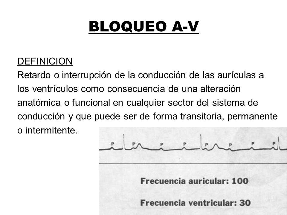 BLOQUEO A-V
