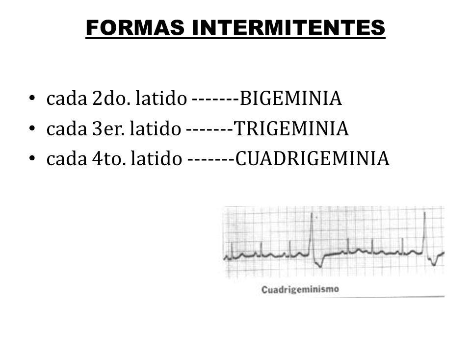 FORMAS INTERMITENTES cada 2do. latido -------BIGEMINIA.