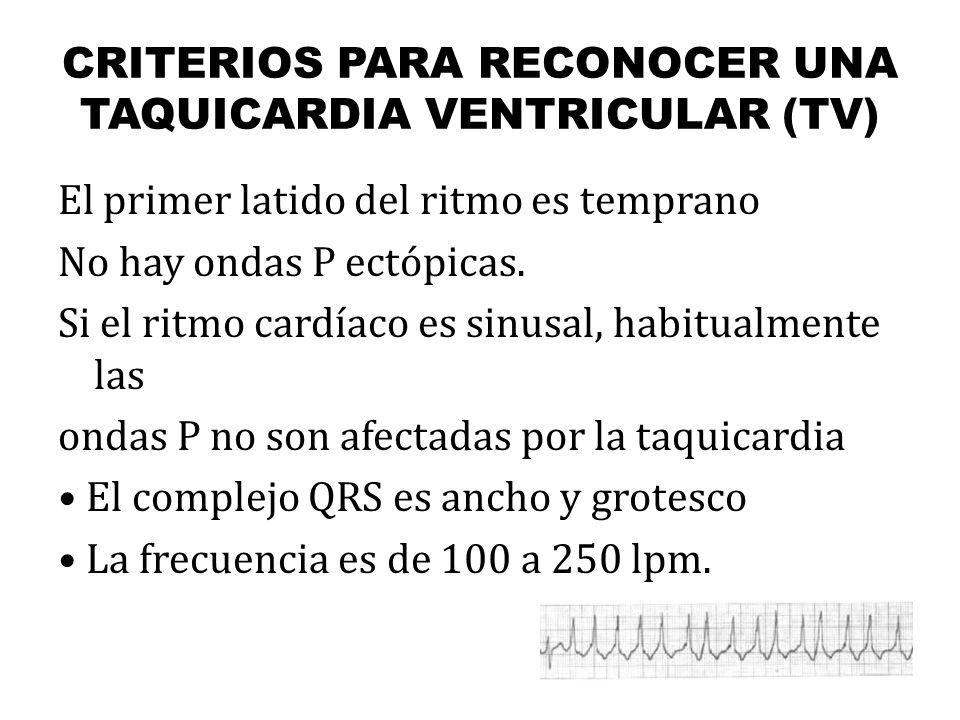 CRITERIOS PARA RECONOCER UNA TAQUICARDIA VENTRICULAR (TV)