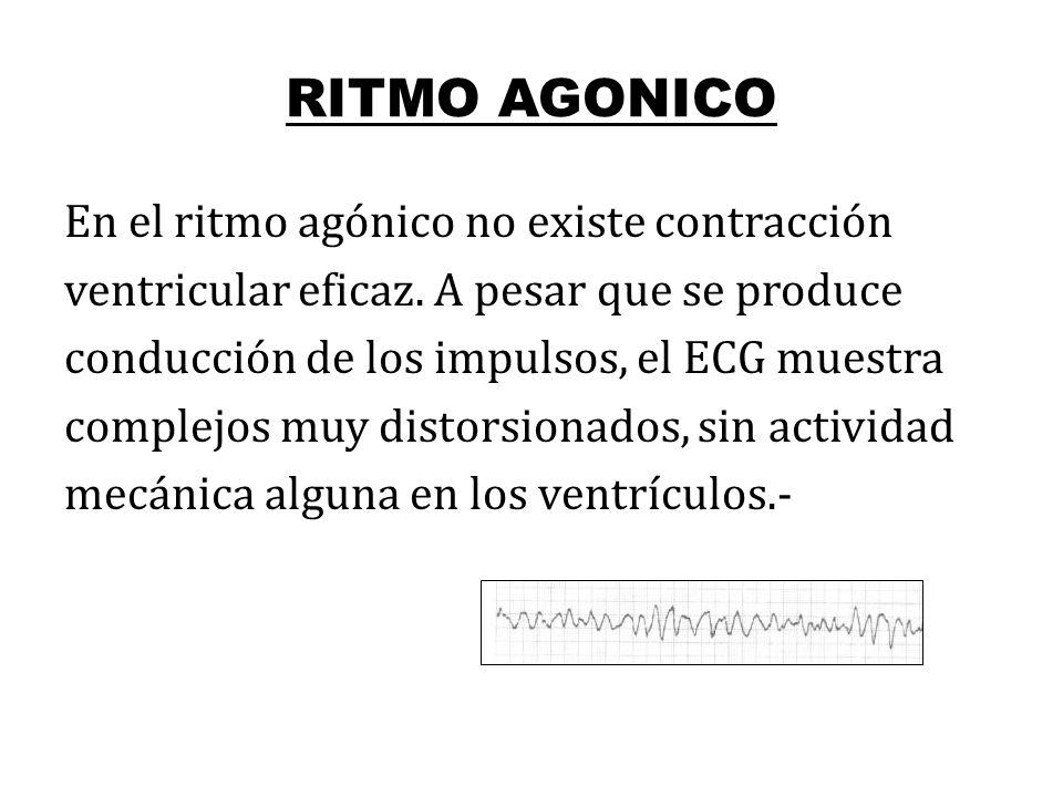RITMO AGONICO