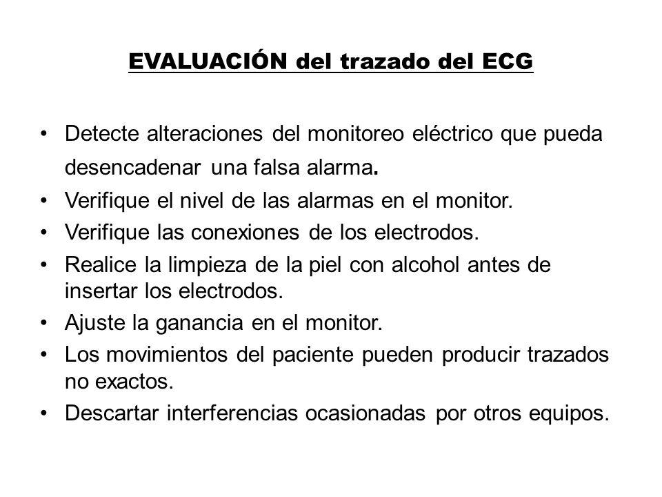 EVALUACIÓN del trazado del ECG