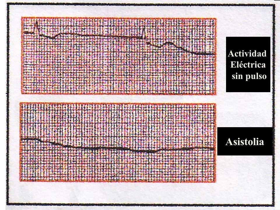 Actividad Eléctrica sin pulso Asistolia