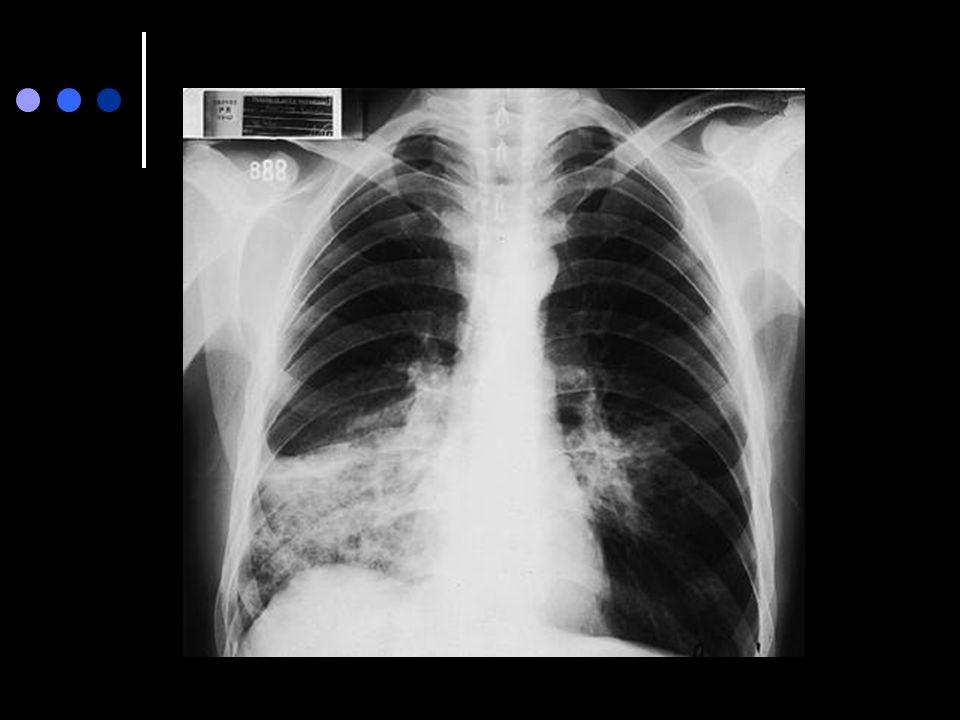 Rad 3. 14. 1. Radiografía de tórax de frente