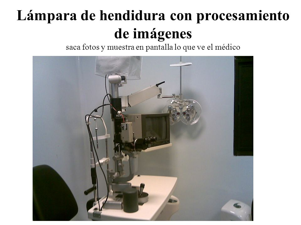 Lámpara de hendidura con procesamiento de imágenes saca fotos y muestra en pantalla lo que ve el médico