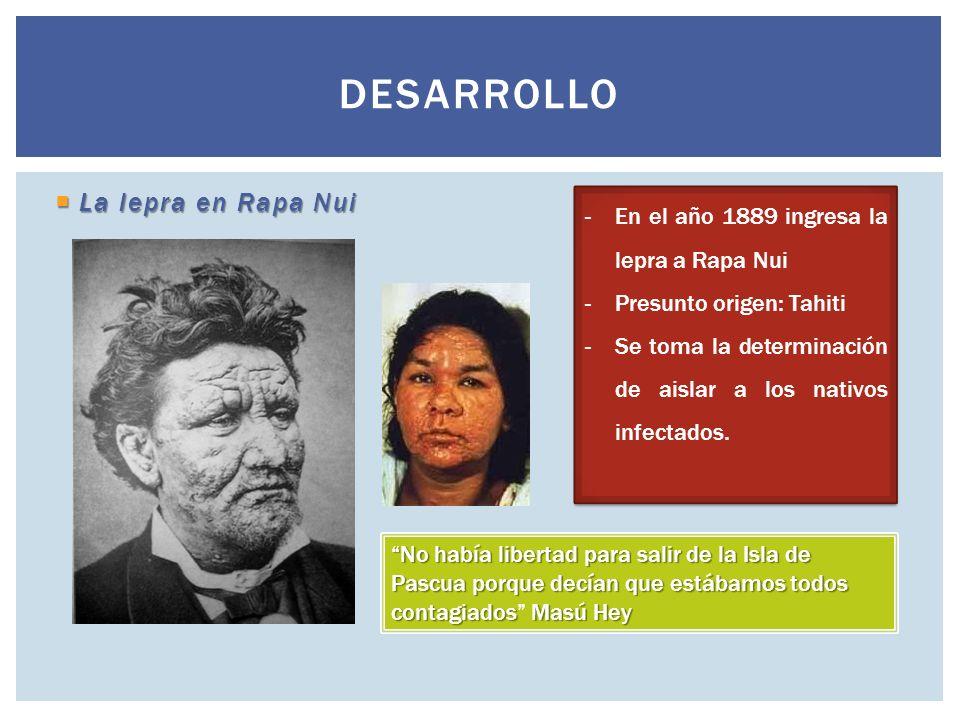 Desarrollo La lepra en Rapa Nui