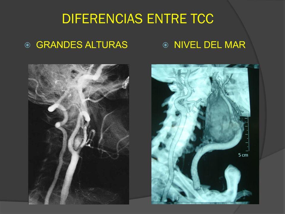 DIFERENCIAS ENTRE TCC GRANDES ALTURAS NIVEL DEL MAR