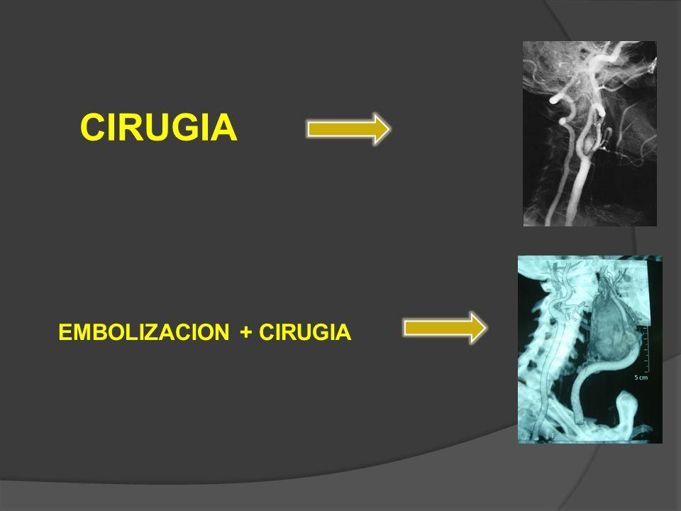 CIRUGIA EMBOLIZACION + CIRUGIA