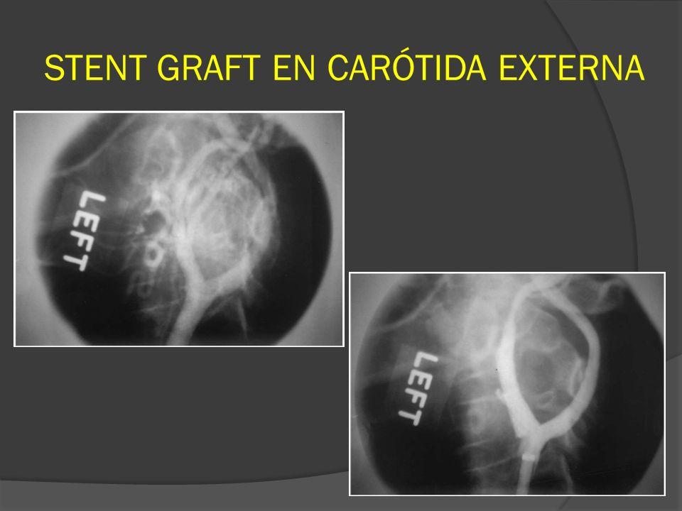STENT GRAFT EN CARÓTIDA EXTERNA