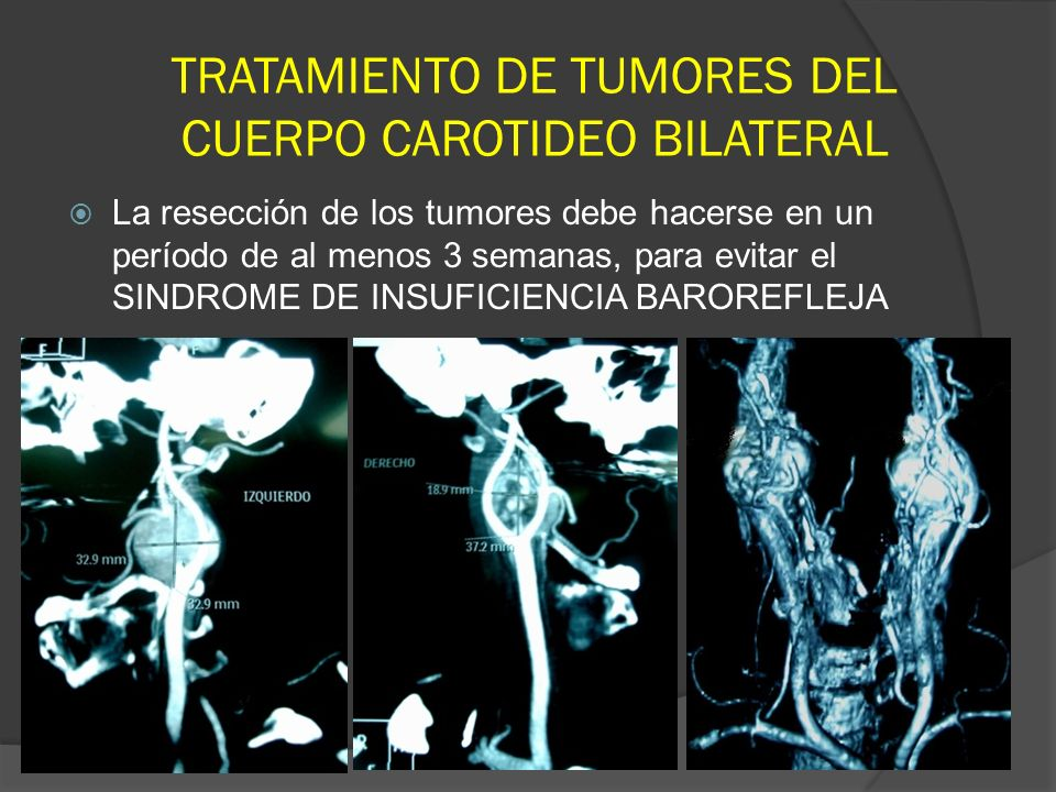 TRATAMIENTO DE TUMORES DEL CUERPO CAROTIDEO BILATERAL