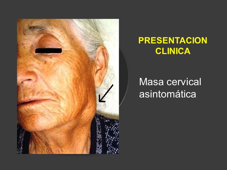 Masa cervical asintomática