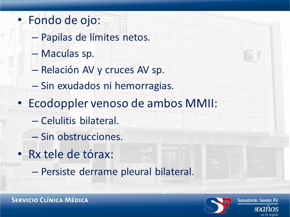 Ecodoppler venoso de ambos MMII:
