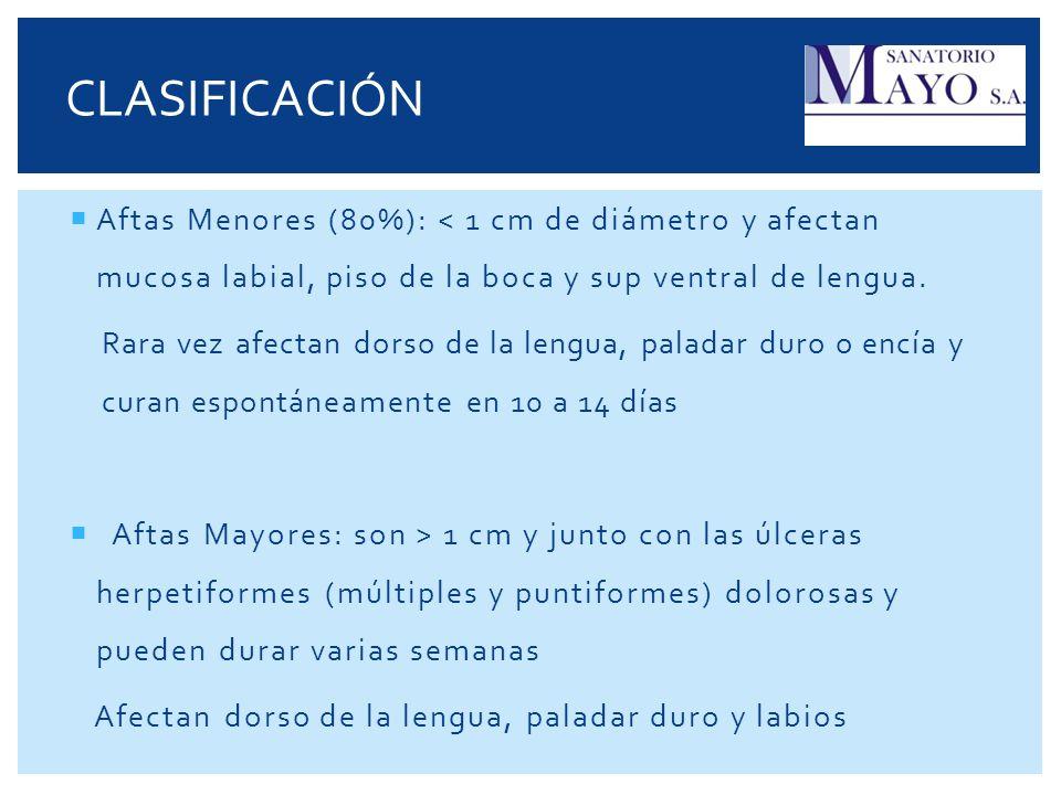 CLASIFICACIÓN Aftas Menores (80%): < 1 cm de diámetro y afectan mucosa labial, piso de la boca y sup ventral de lengua.