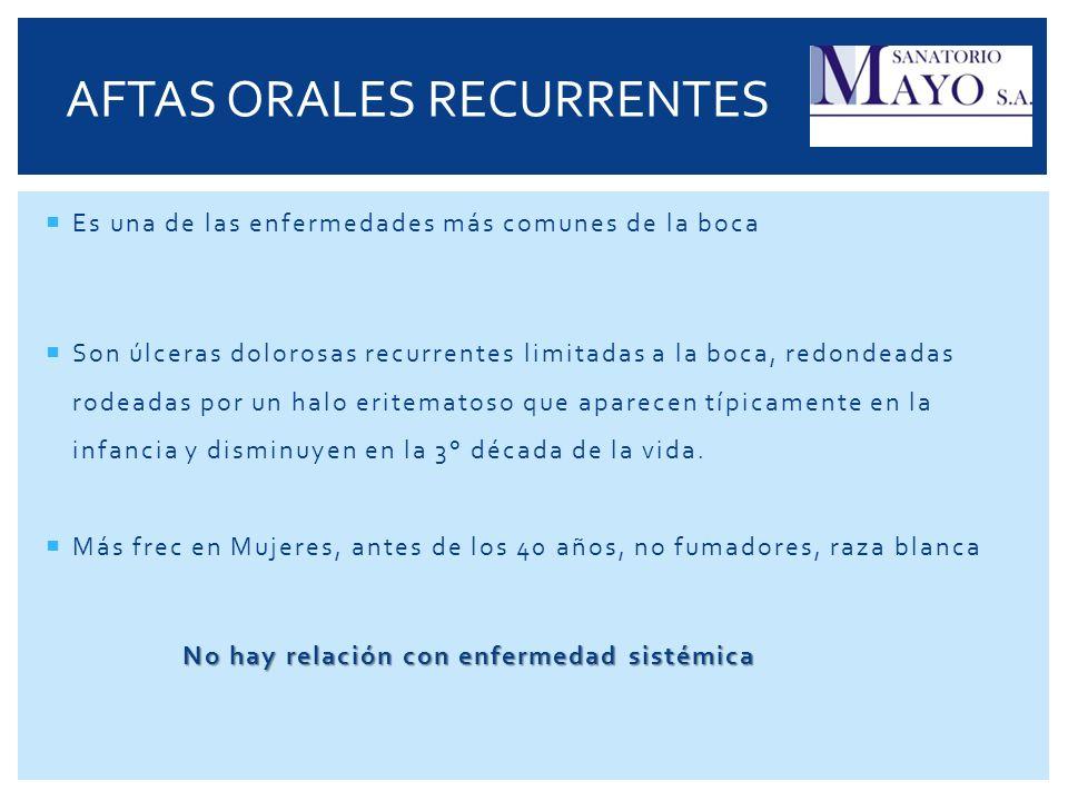 AFTAS ORALES RECURRENTES