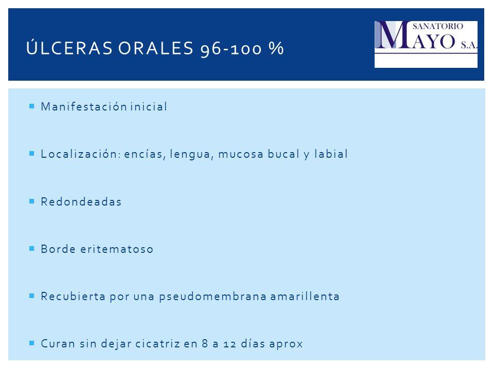 Úlceras orales 96-100 % Manifestación inicial