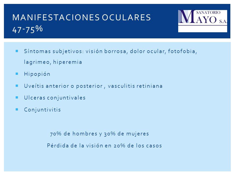 Manifestaciones oculares 47-75%