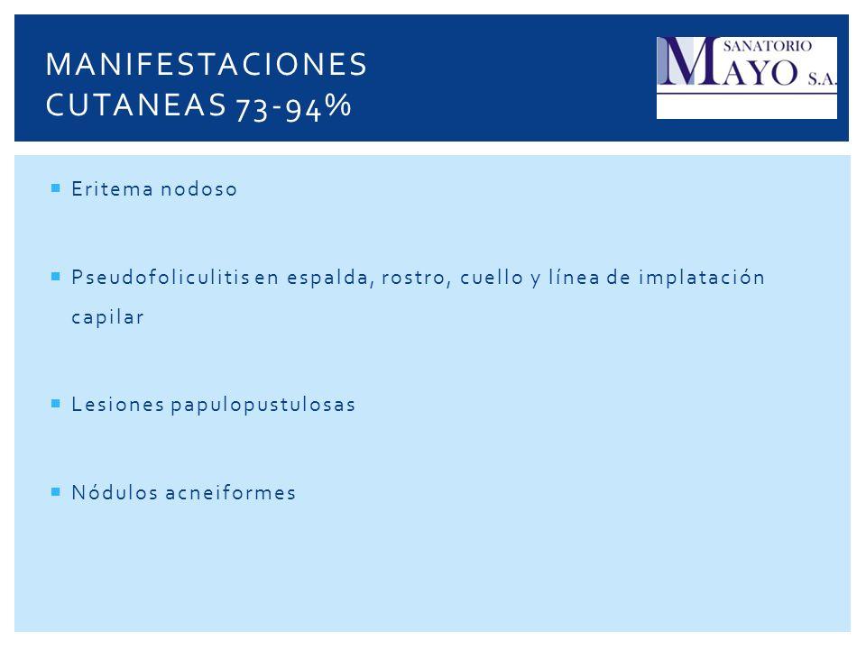 Manifestaciones cutaneas 73-94%